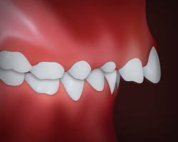 Example of a front teeth protrusion